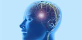 Deep Brain stimulation