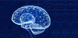 Parkinsons Disease brain